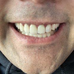 Draper Smiles