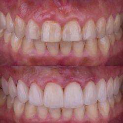 Zen Dentistry