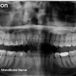 SHARAD SOHONI, DDS - 64 Reviews - Oral Surgeons - 105 ...