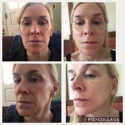 Milf toes facial pain specialist ny albany ball anal