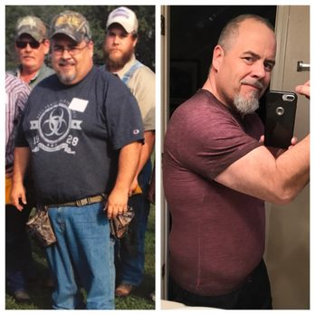 Weight loss surgery fort smith ar