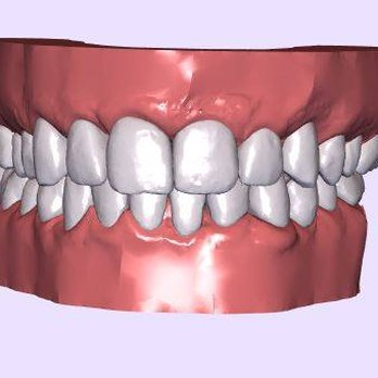 Clear Aligners Smile Direct Club Length Cm