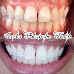 The Best 10 Teeth Whitening In Los Angeles Ca Last Updated