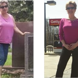 Accu weight loss scarsdale