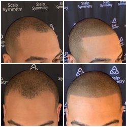 Hair Loss Centers In La Mesa Yelp