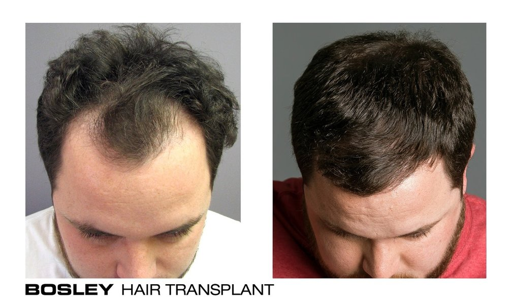 Bosley Hair Transplant Amp Restoration 96 Photos 70 Reviews Hair Loss Centers 9100 Wilshire Blvd Beverly Hills Ca Phone Number Yelp