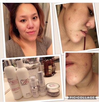 Abby Skin Clinic Ffms Medical Spa 31881 Alvarado Blvd Union City Ca Skin Treatments Mapquest