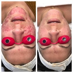 Best Acne Treatment Near Me September 2020 Find Nearby Acne Treatment Reviews Yelp