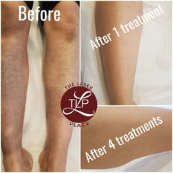 Queens Laser and Electrolysis Hair Removal - 29 Photos & 69