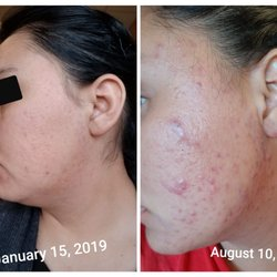 Top 10 Best Acne Facial In Escondido Ca Last Updated March 2020 Yelp
