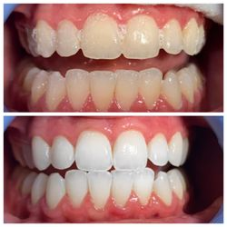 Clear Aligners All Colors