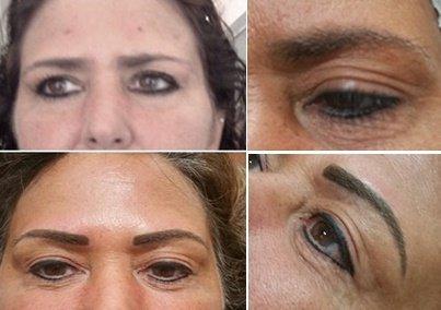 Permanent Makeup Jacksonville Fl - Mugeek Vidalondon