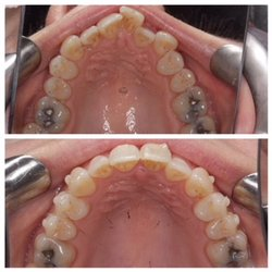 The 6-Second Trick For Cheap Braces