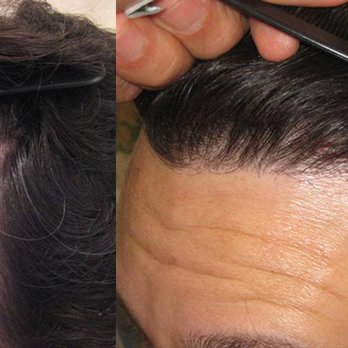 Timothy Carman Md La Jolla Hair Restoration Hair Loss Centers 6515 La Jolla Blvd La Jolla San Diego Ca Phone Number Yelp